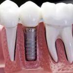 Time to visit — здоровье и красота Ваших зубов!